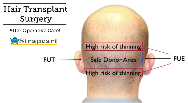 Post Operative Care Tips For Hair Transplant/Surgery